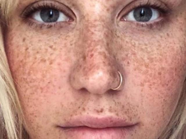 """""""Abgefuckt und unperfekt"""": Kesha lässt die Maske fallen"""