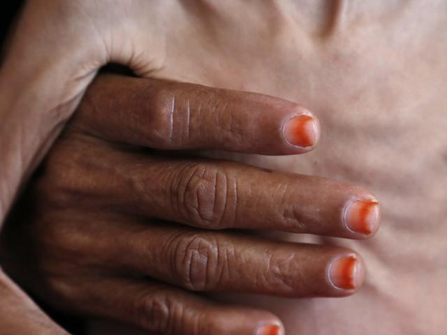 Welthunger-Index 2018: 50 Ländern droht Niederlage im Kampf gegen Hunger