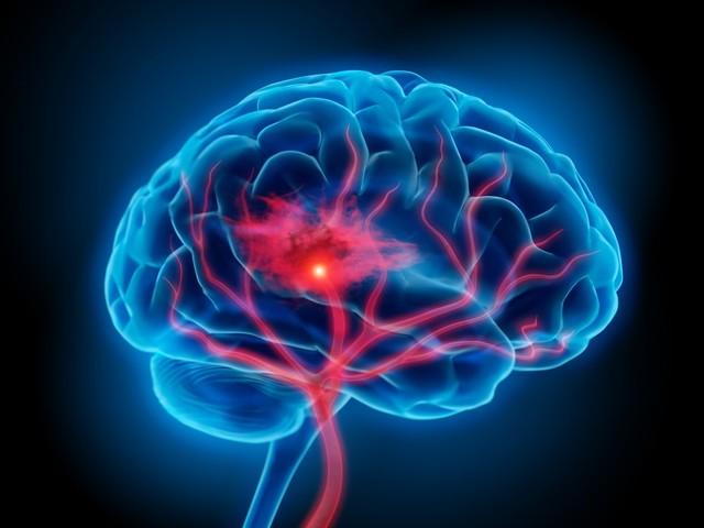 big - Bluthochdruck Und Rauchen Steigern Eindeutig Die Gefahr Von Hirnblutungen