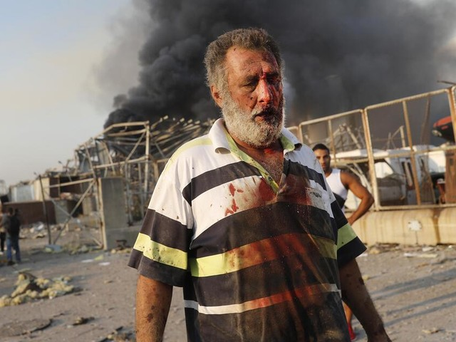 """""""Apokalypse"""" in Beirut: Explosion verschärft das Leid derLibanesen"""