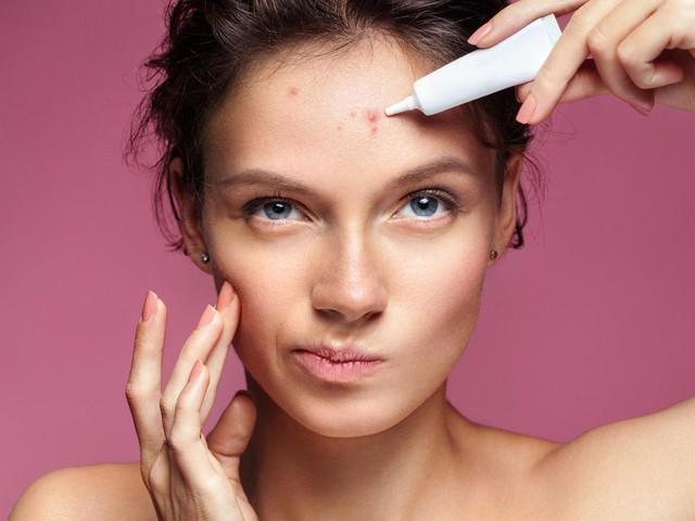 Pickel entfernen: Geniale Tricks für eine schöne Haut