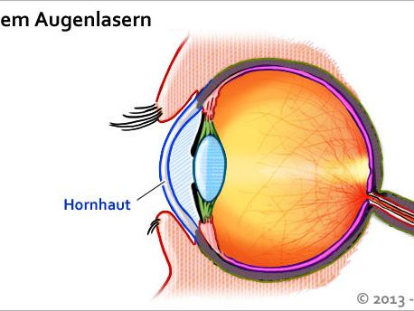 Augen Lasern Lassen Risiken