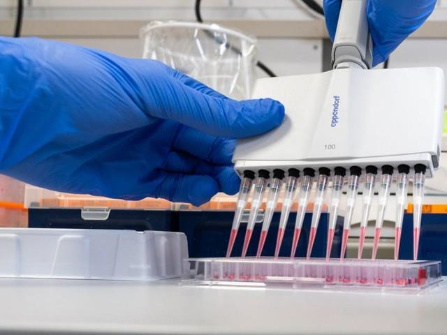 Coronavirus: Erster Fall in Afrika aus Ägypten gemeldet