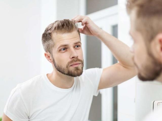 Haarausfall: Das können Sie tun, wenn die Glatze droht