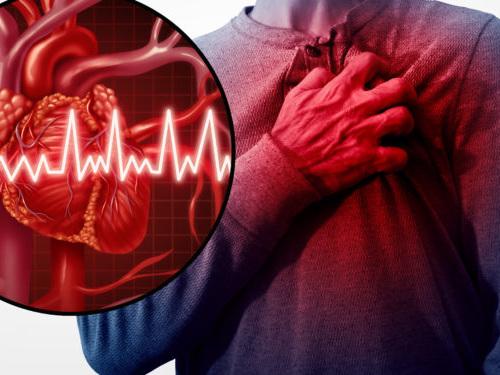 Arterienverkalkung: Viele Menschen wissen nichts von ihrer Herz-Kreislauf-Erkrankung