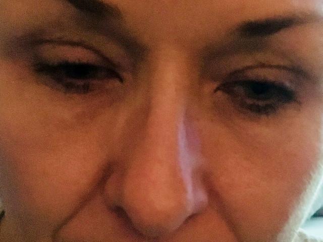 Frau schminkt sich 25 Jahre nicht ab: Arzt ist beim Anblick der Augen schockiert