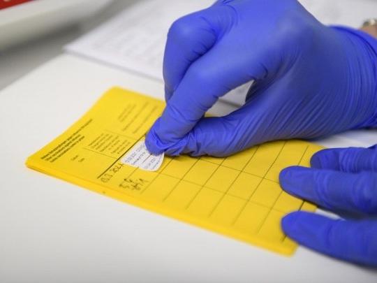 Covid-19 - Bundesrat stimmt über Lockerungen für Geimpfte und Genesene ab