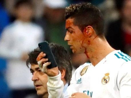 Eurogoals: Blutiges Ende für Ronaldo bei Reals Torfestival