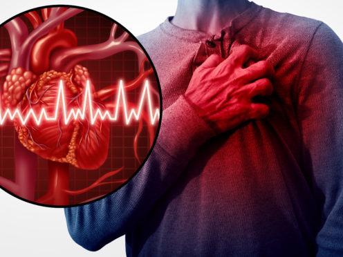Gesundheit: Milliarden von verschmutzten Luftpartikeln belasten unsere Herzen