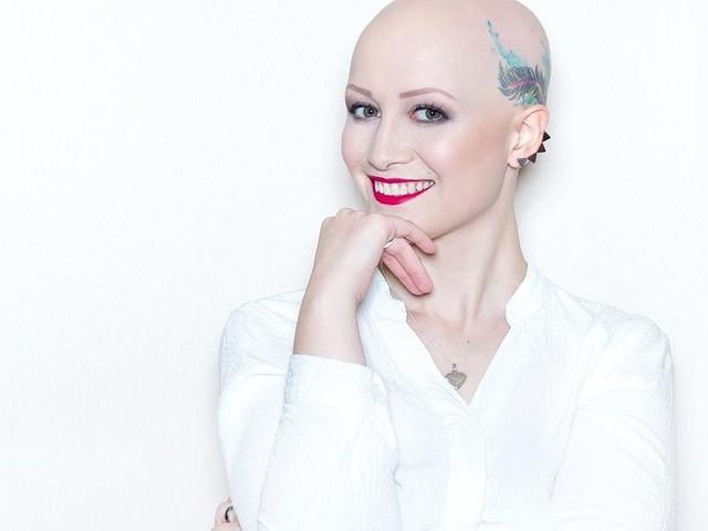 Seltene Autoimmunerkrankung - Mit 12 fielen Kristina die Haare aus - heute ist sie Vorbild für viele Betroffene