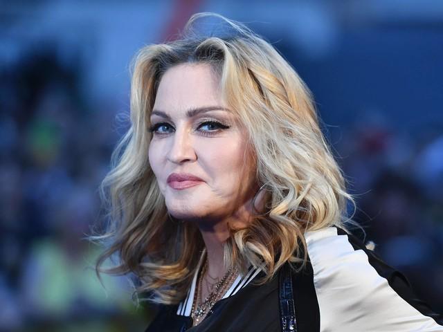 Faceshaming: Dieses Foto von Madonna regt ihre Fans auf