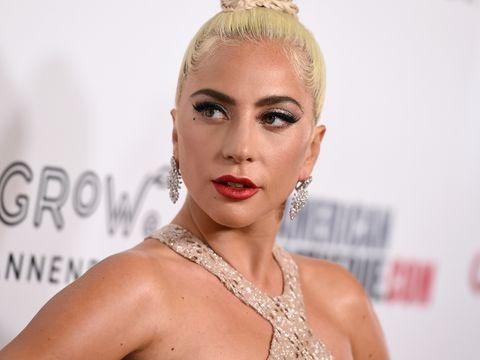 Hollywood: Fünf Festnahmen nach Diebstahl von Lady Gagas Hunden