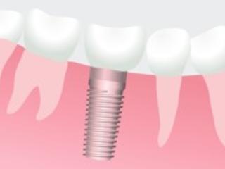 Zahnimplantat-Kosten, günstige Implantate als Zahnersatz