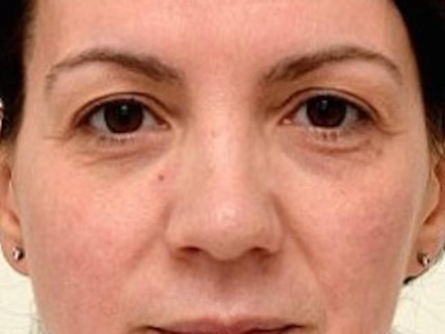 Frau trank 4 Wochen lang 3 Liter Wasser am Tag – so sieht sie danach aus