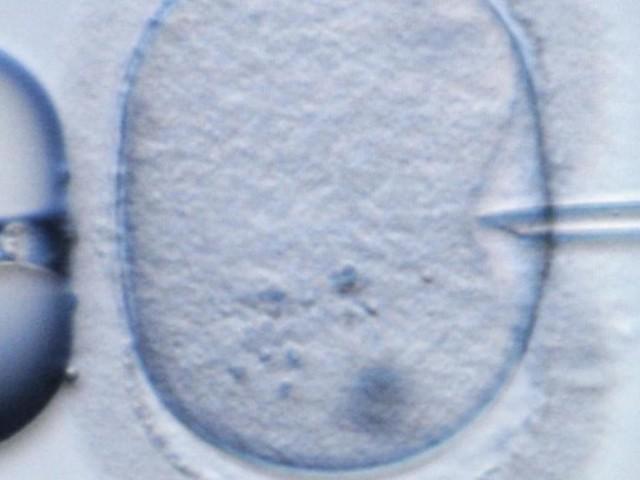 Arzt befruchtet 49 Frauen mit seinem eigenen Sperma – ohne deren Wissen