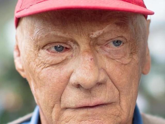 Erst im August transplantiert - Große Sorge um Niki Lauda: Was die Diagnose Lungenentzündung bedeutet