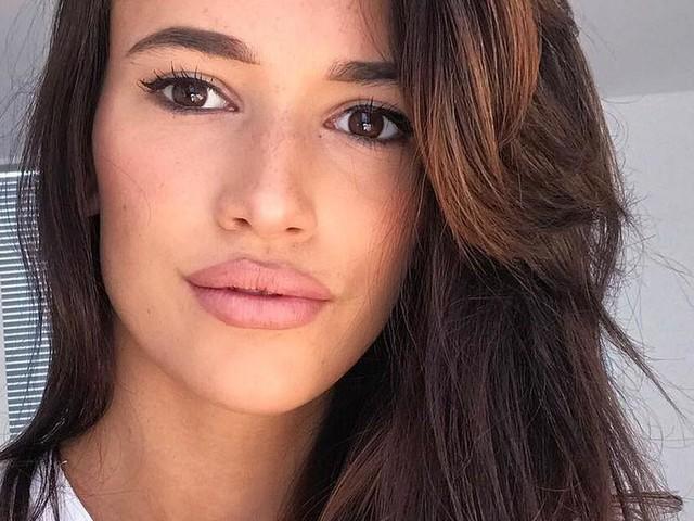 Vollere Lippen: Hanna Weig gibt zu, nachgeholfen zu haben
