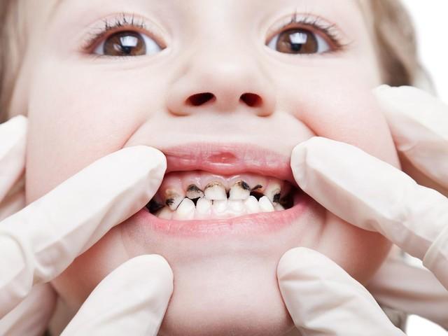 Zahngesundheit: Britischem Trinkwasser wird Fluorid zugesetzt, um Karies zu bekämpfen