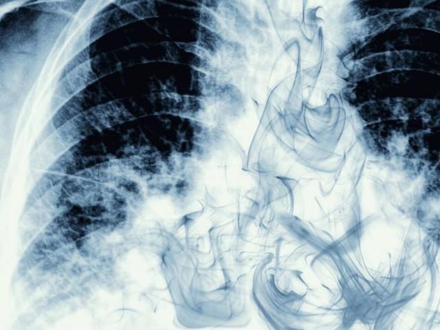 1.000 weniger Lungenkrebs-Tote wären pro Jahr in Österreich möglich