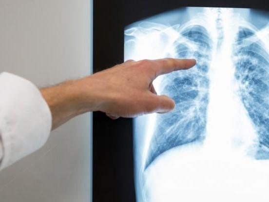 Mann hustet sich wortwörtlich die Lunge aus dem Leib