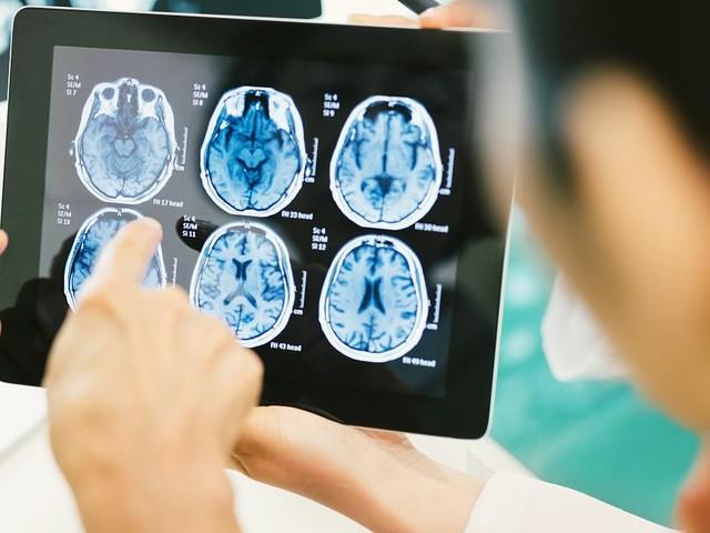 Hoffnung trotz Rückschlägen - Hirnverfall bremsen: Wie wir leben, bestimmt unser Alzheimer-Risiko
