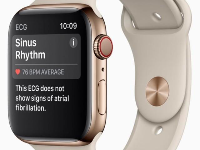 Apple veröffentlicht EKG-App zur Überwachung des Herzrhythmus