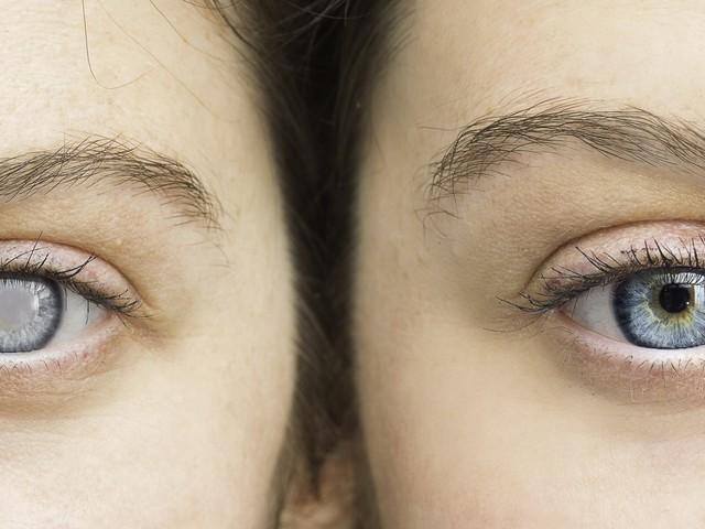 Grüner Star: Hormonelle Verhütungsmittel erhöhen das Glaukom-Risiko