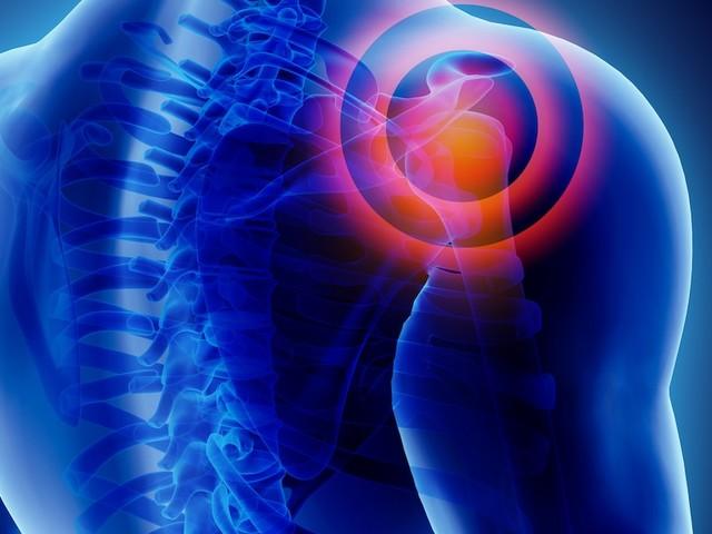 """Risiko für """"Frozen Shoulder"""" - Unerklärliche Schmerzen in der Schulter? Es kann an den Organen liegen"""