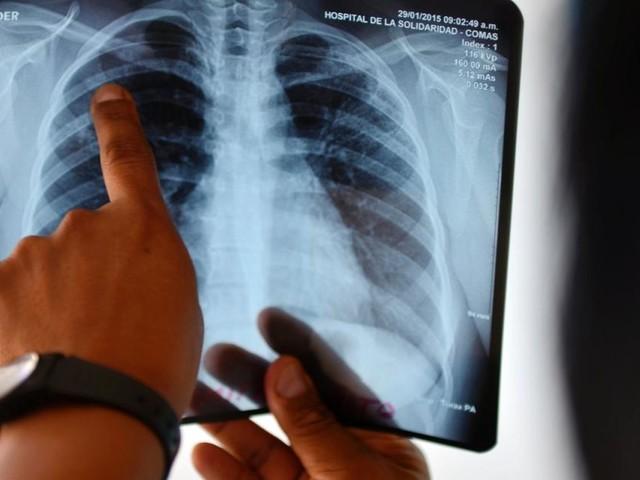 Welttag der Tuberkulose: Auch in Österreich sterben Patienten
