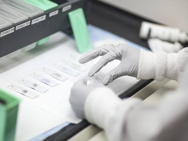 Krankenkassen zahlen künftig Biomarker-Test bei Brustkrebs