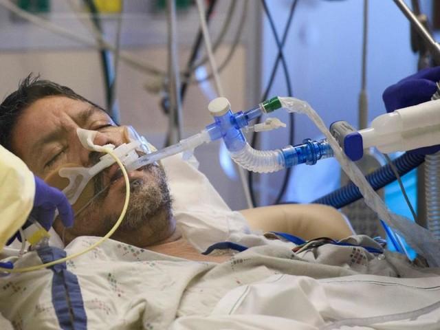Coronavirus: Neuer DNA-Test erkennt Lungenentzündung rasch