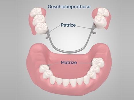 Kosten für Teilprothesen & herausnehmbaren Zahnersatz » zahnimplantate.com