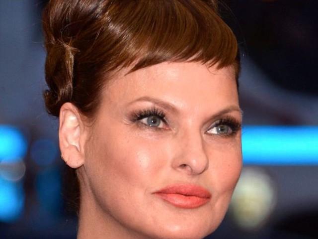 Ex-Topmodel: Linda Evangelista: «Schönheitsoperation hat mich entstellt»