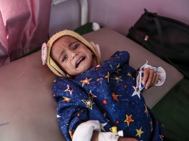 Index der Welthungerhilfe: Der Hunger kehrt zurück