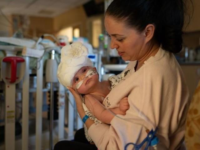 In Kalifornien: Siamesische Zwillinge getrennt