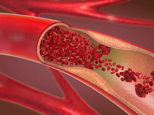 Herzinfarkt-Risikofaktor durch körperliche Aktivität erhöht