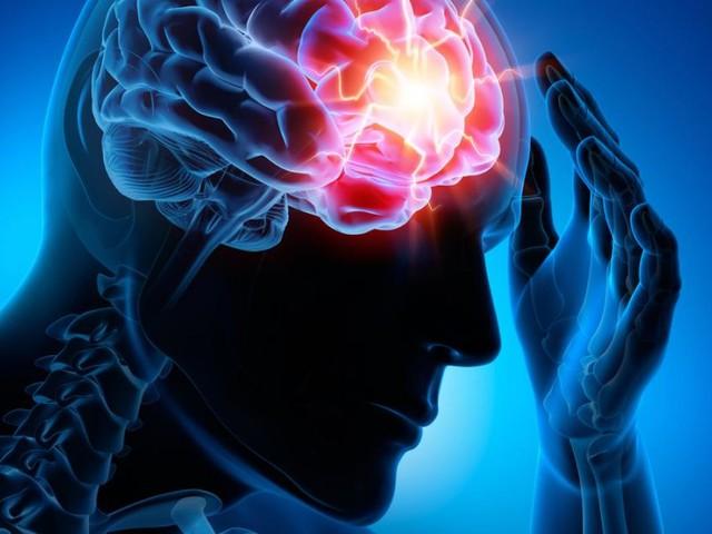 Neurologie: Warum mehr Behandlungskapazitäten notwendig sind