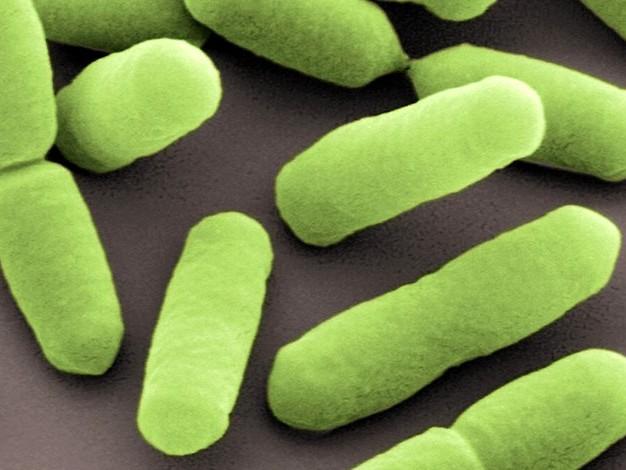 Listerien-Skandal: Offenbar dritter Todesfall durch keimbelastete Wurst