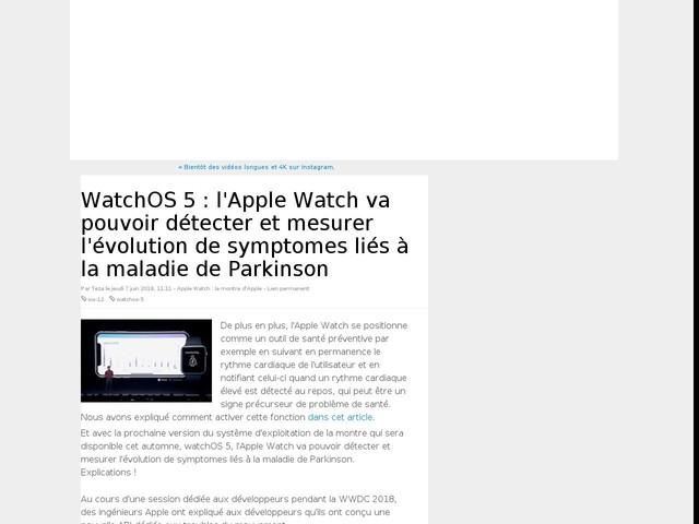 WatchOS 5 : l'Apple Watch va pouvoir détecter et mesurer l'évolution de symptomes liés à la maladie de Parkinson