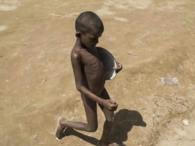 """""""La peau sur les os"""": les enfants Rohingyas menacés par la malnutrition"""