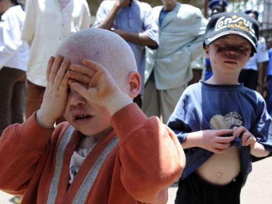 Burundi: découverte du corps démembré d'un jeune albinos