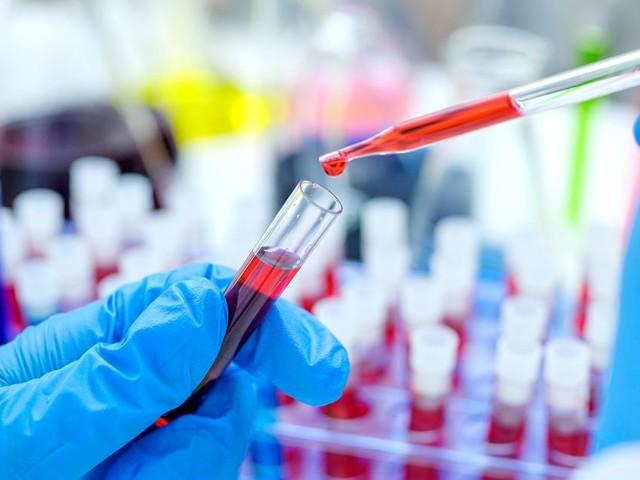 Soigner le coronavirus en utilisant des patients guéris, le pari de ce labo chinois
