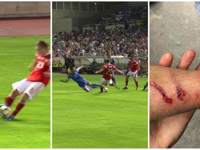 L'horrible blessure provoquée par un joueur du Standard lors des qualifications pour l'Euro: le très vilain tacle de Kostas Laifis (photos)