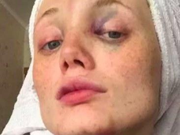 Victime de violences conjugales, elle livre un témoignage bouleversant