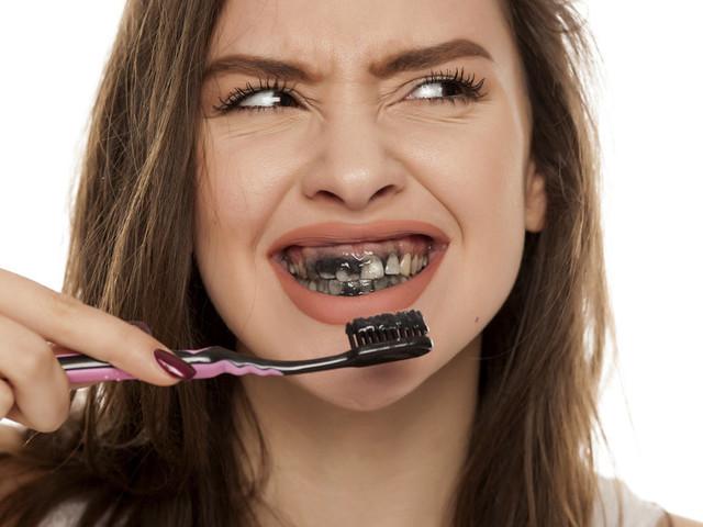 Le dentifrice au charbon est-il vraiment un produit sûr? Des dentistes vous expliquent les risques