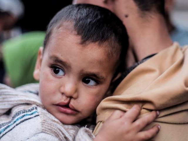 """""""Opération Smile"""" à Tanger: 160 enfants opérés gratuitement de leurs malformations faciales"""