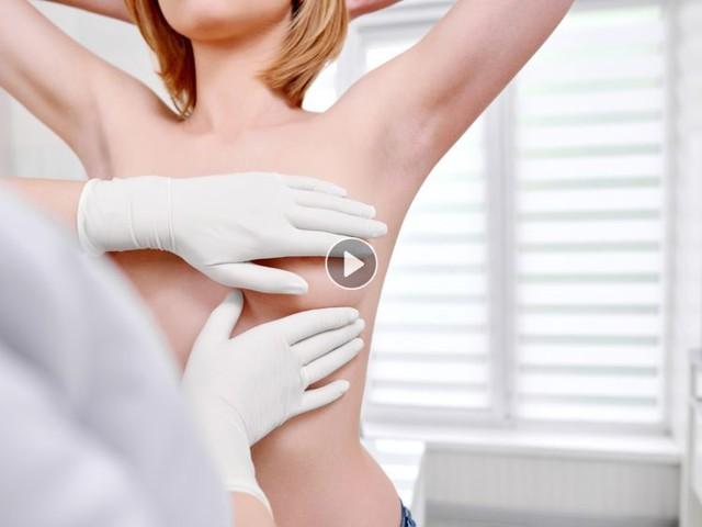 Cancer du sein : les nouvelles recommandations officielles pour s'en prémunir