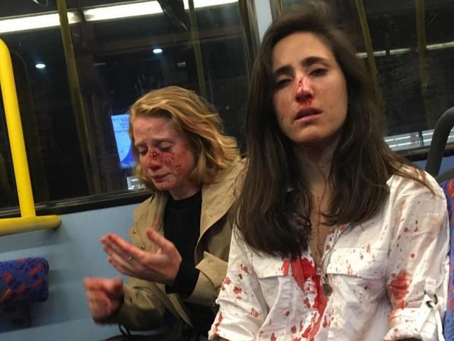 Quatre ados inculpés pour l'agression d'un couple de lesbiennes à Londres