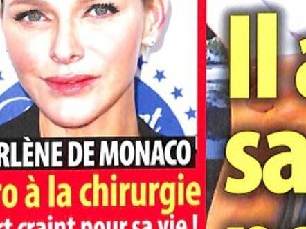 Charlène de Monaco, visage figé en public, une autre opération ratée (photo)