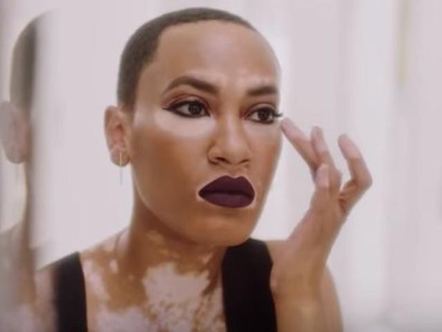 Cette mannequin atteinte de vitiligo est la nouvelle égérie d'une marque de maquillage